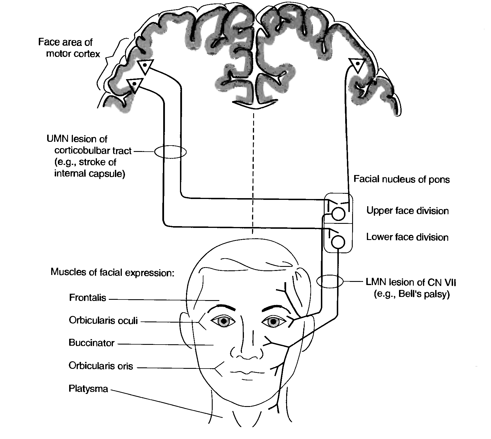 Was Left lower motor neuron facial weakness yes You