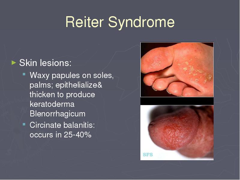 History: Reactive arthritis usually develops 2-4 weeks after a ...